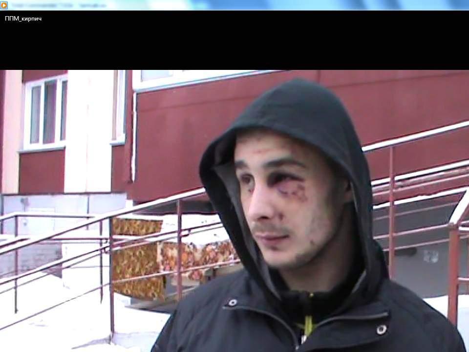 В Кирове 24-летнему мужчине предъявлено обвинение в причинении тяжкого вреда здоровью 7-летнему ребенку.