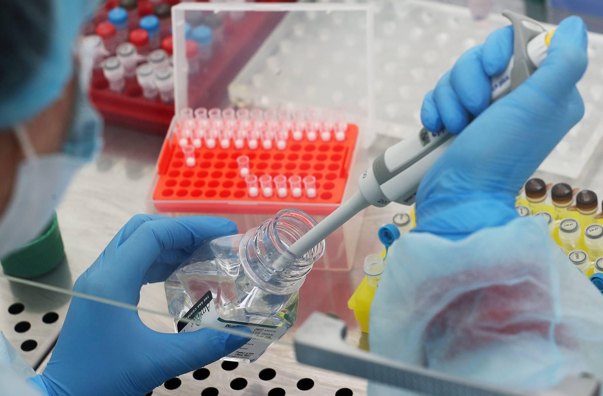 За сутки в Кировской области выявили 50 новых случаев коронавируса.