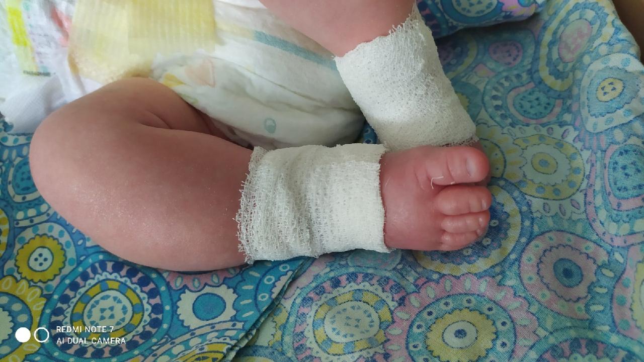 Следователи проверят, как в кировской больнице новорожденному травмировали ногу